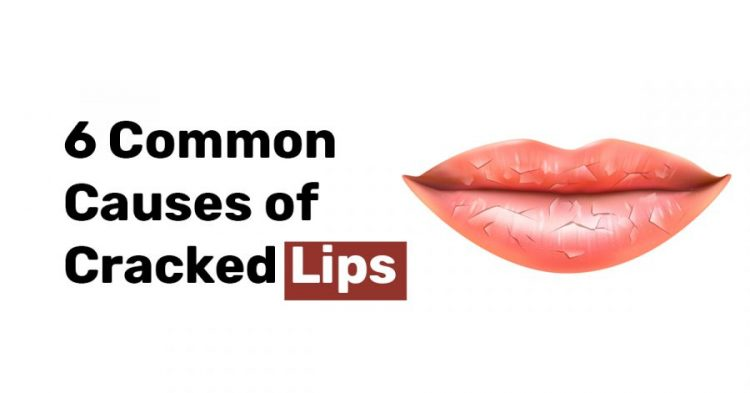 6 Common Causes of Cracked Lips