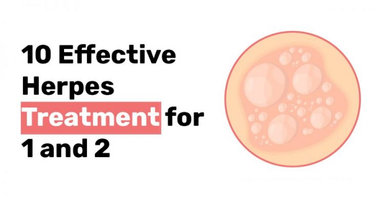10 Effective Herpes Treatment for 1 and 2