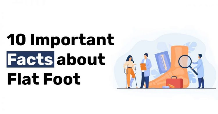 10 Important Facts about Flat Foot