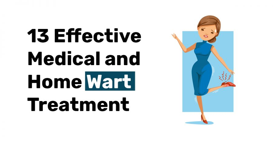 13 Effective Medical and Home Wart Treatment