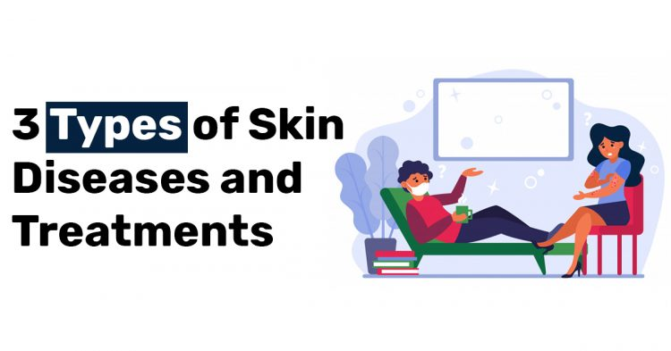 3 Types of Skin Diseases and Treatments