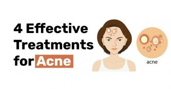 4 Effective Treatments for Acne