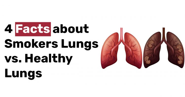 4 Facts about Smokers Lungs vs. Healthy Lungs