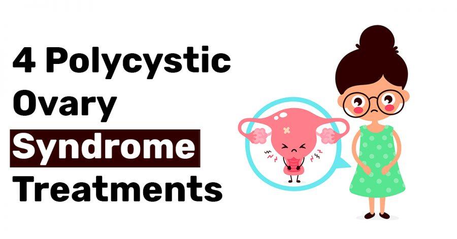 4 Polycystic Ovary Syndrome Treatments