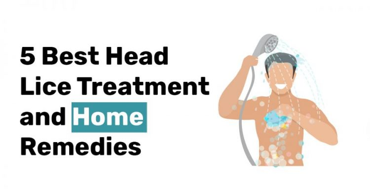 5 Best Head Lice Treatment and Home Remedies