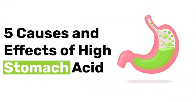 5 Causes and Effects of High Stomach Acid