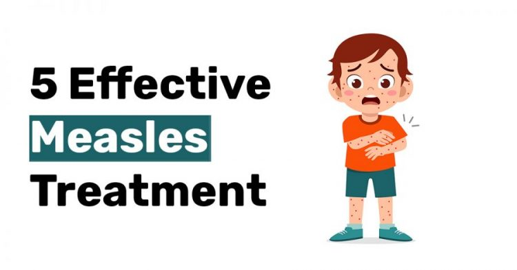 5 Effective Measles Treatment