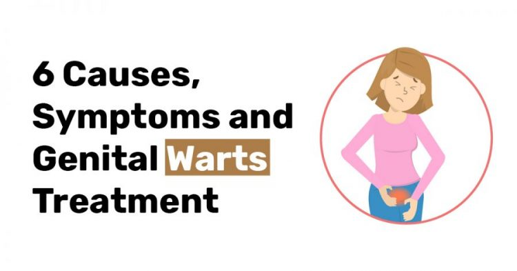 6 Causes Symptoms and Genital Warts Treatment