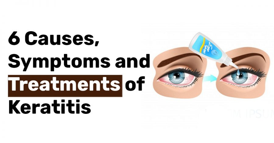 6 Causes Symptoms and Treatments of Keratitis