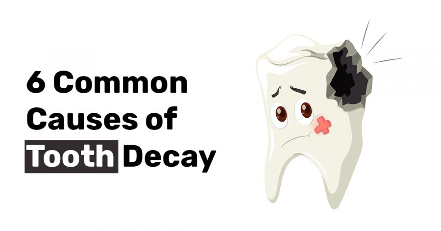 6 Common Causes of Tooth Decay