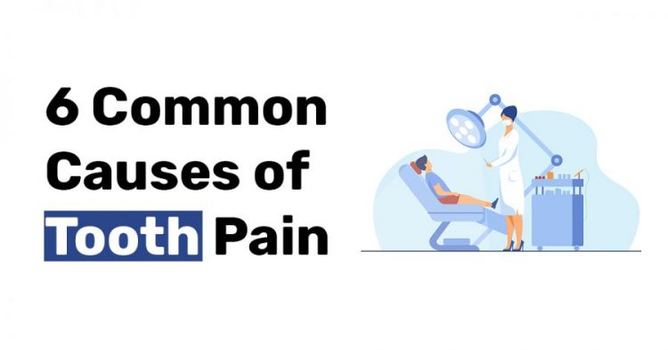 6 Common Causes of Tooth Pain