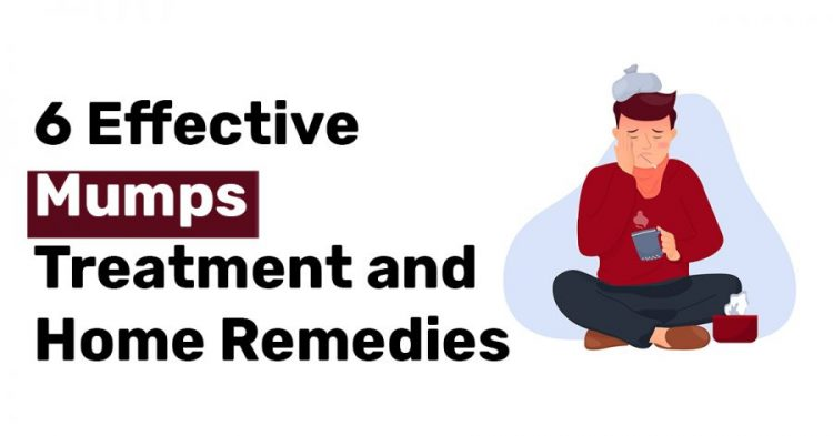 6 Effective Mumps Treatment and Home Remedies