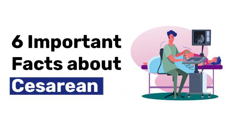 6 Important Facts about Cesarean 1