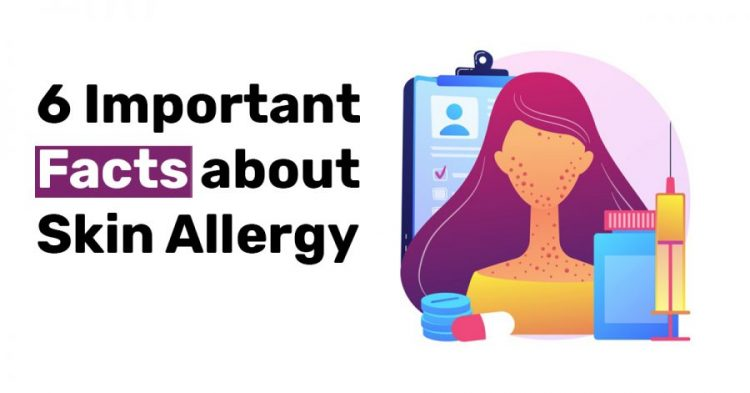6 Important Facts about Skin Allergy