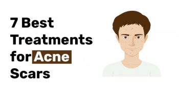 7 Best Treatments for Acne Scars