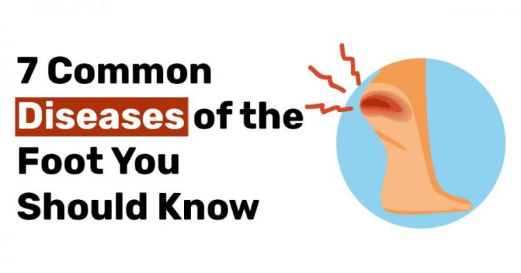 7 Common Diseases of the Foot You Should Know
