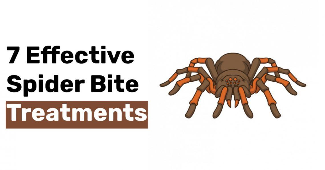 7 Effective Spider Bite Treatments