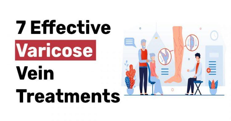 7 Effective Varicose vein treatments