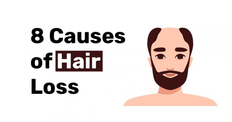 8 Causes of hair loss.1