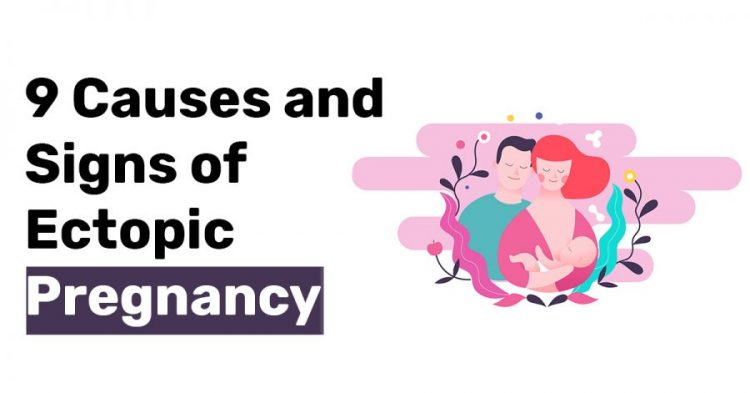 9 Causes and Signs of Ectopic Pregnancy