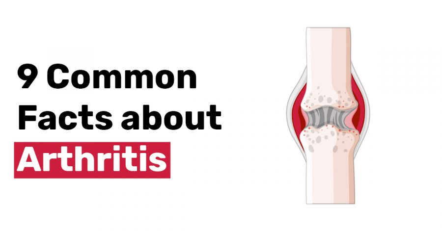 9 Common Facts about Arthritis