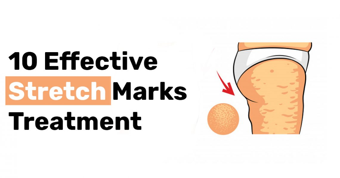 10 Effective Stretch Marks Treatment
