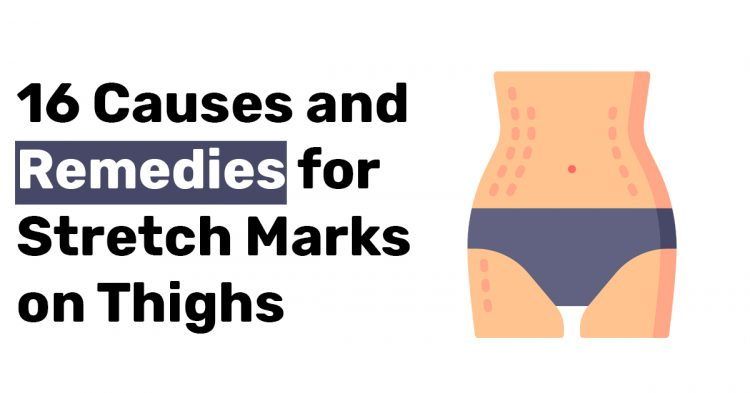 16 Causes and Remedies for Stretch Marks on Thighs