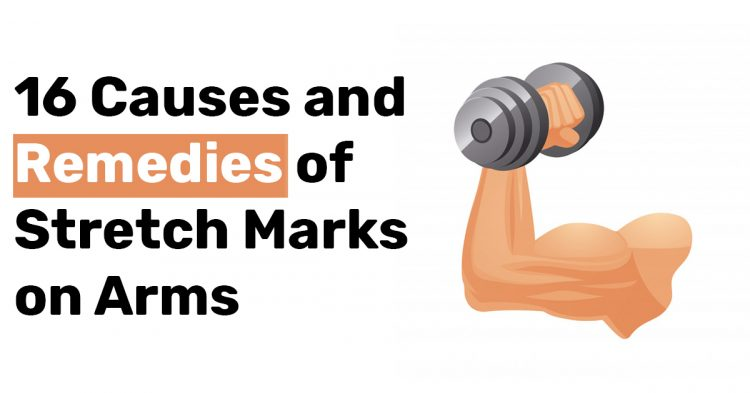 16 Causes and Remedies of Stretch Marks on Arms