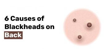 6 Causes of Blackheads on Back