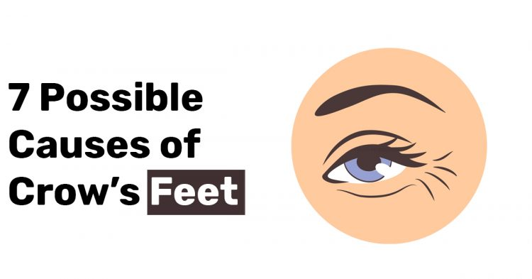 7 Possible Causes of Crows Feet