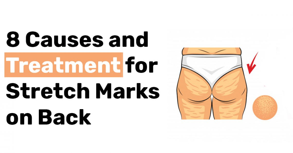 8 Causes and Treatment for Stretch Marks on Back