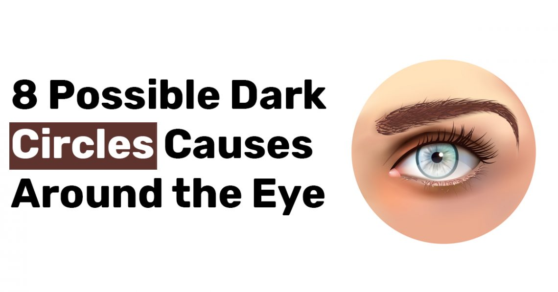 8 Possible Dark Circles Causes Around the Eye