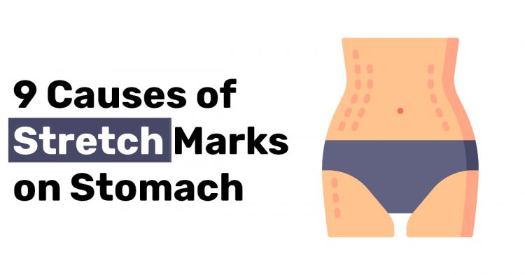 9 Causes of Stretch Marks on Stomach