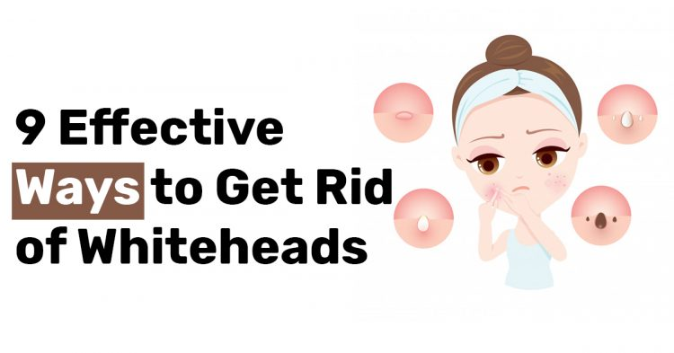 9 Effective Ways to Get Rid of Whiteheads