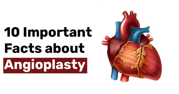 10 Important Facts about Angioplasty